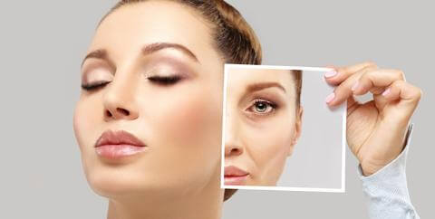 Woman with Dermal Fillers | Carbon Blush