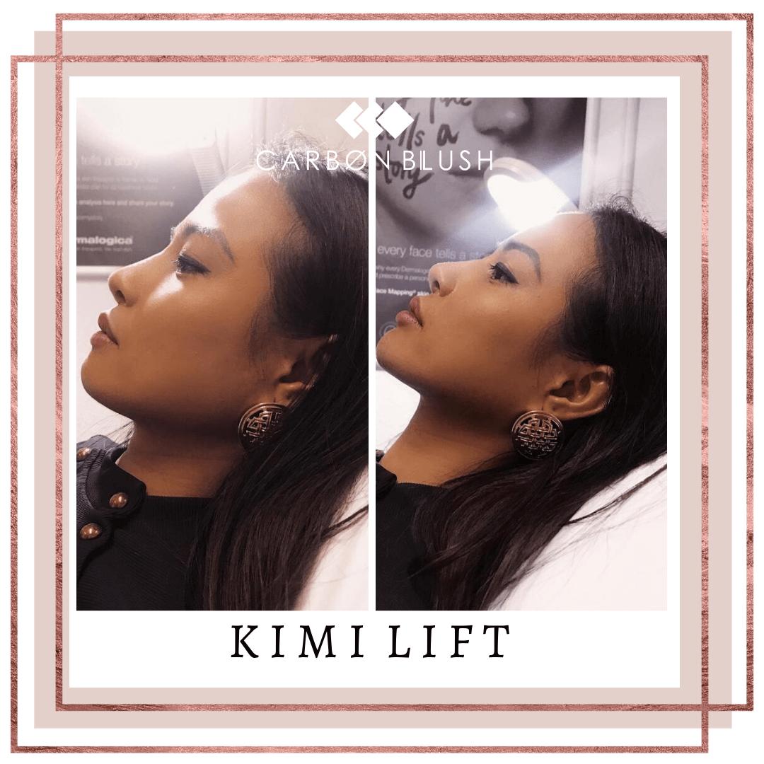 Kimi Lift Client