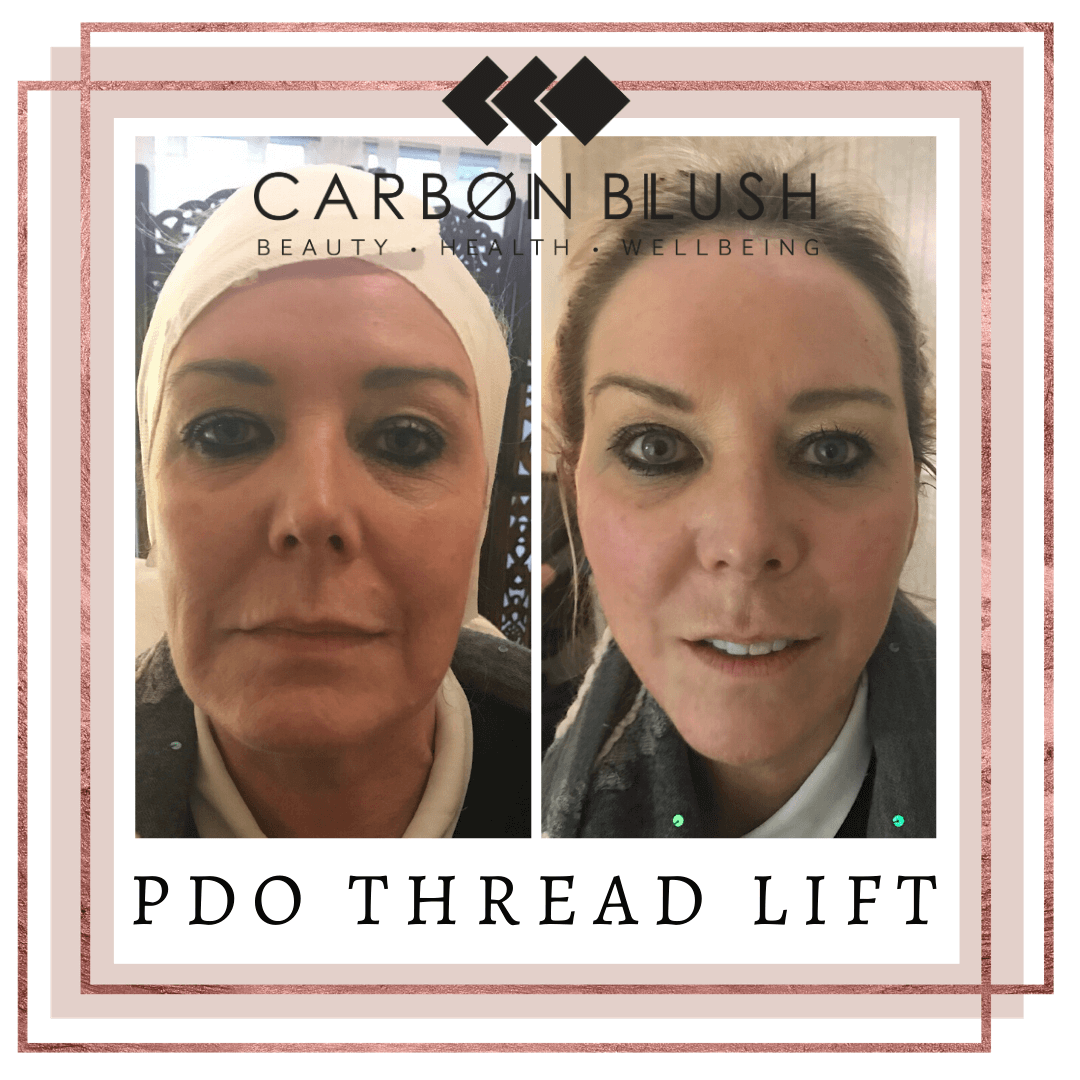 PDO Threadlift Client