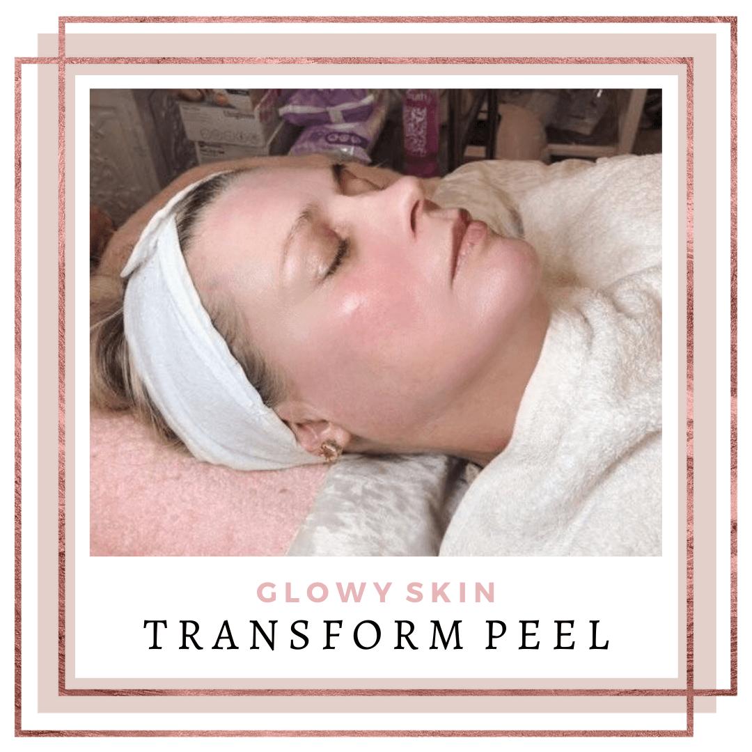 Transform TCA Peel Client Photo