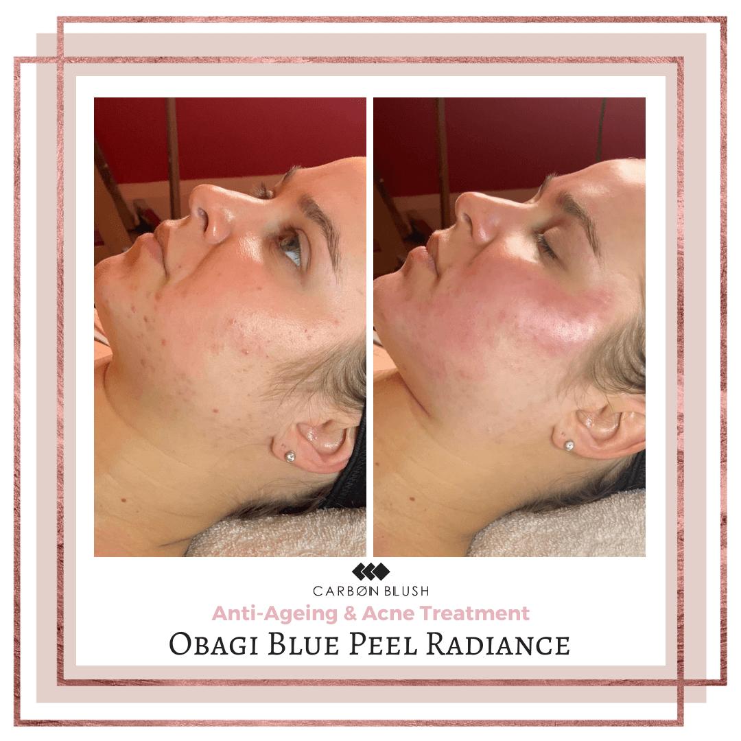 Before & After Skin Peel