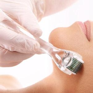 Microneedling Treatment | Carbon Blush