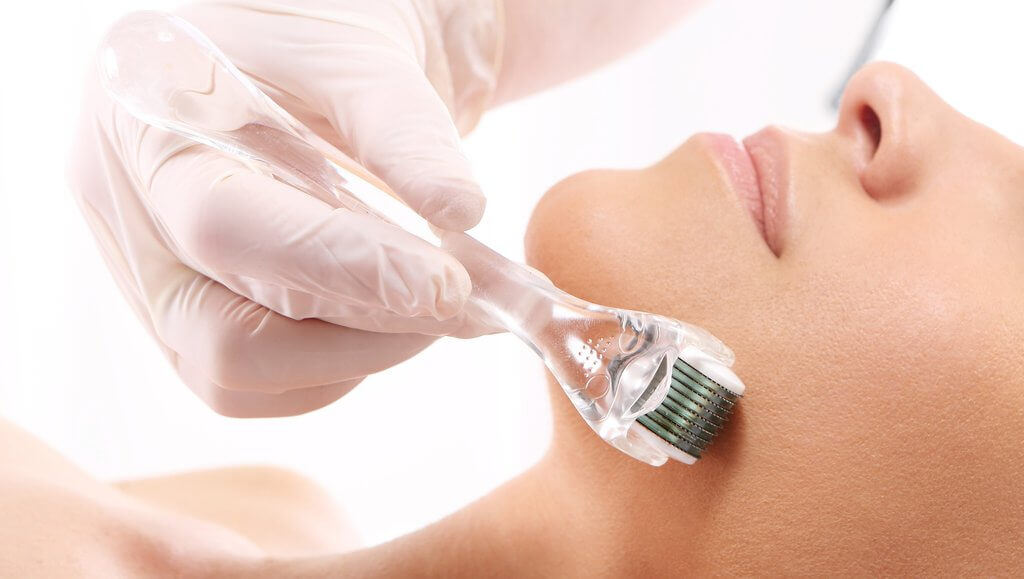 Microneedling Treatment | Carbon Blush