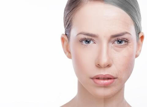 Woman Before and After Skin Peel | Carbon Blush