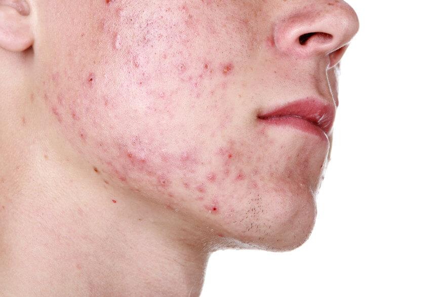 EUDELO: Can the sun make my acne worse?