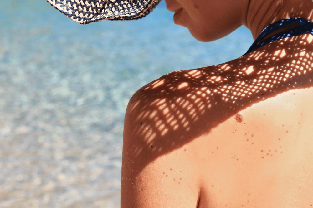 BODY BLENDZ: Enlightening Facts About Dark Spots and Hyperpigmentation