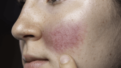 DR SAM BUNTING: Managing Rosacea – The Low-Down